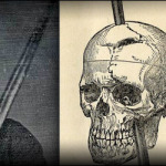 phineas-gage2